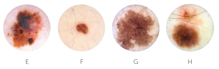 MoleScope™ | Skin Cancer Images