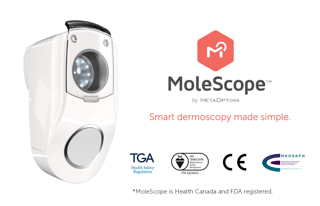 molescope flyer