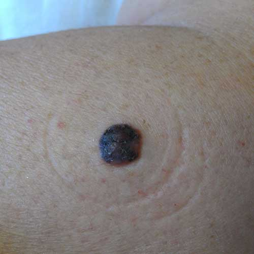 melanoma clinical image