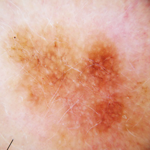 melanoma dermoscopic image