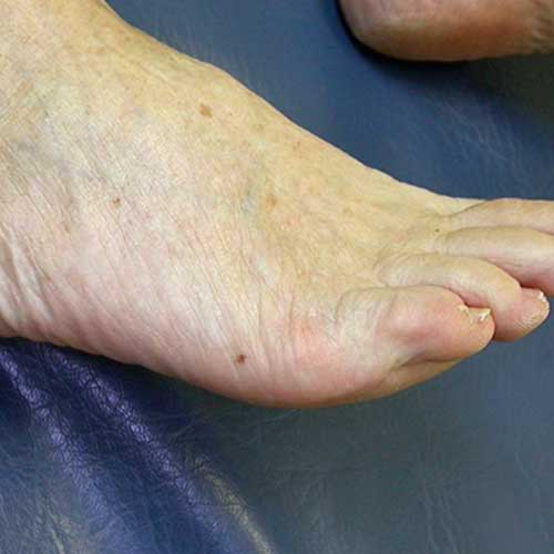 May not White spot on bottom of foot